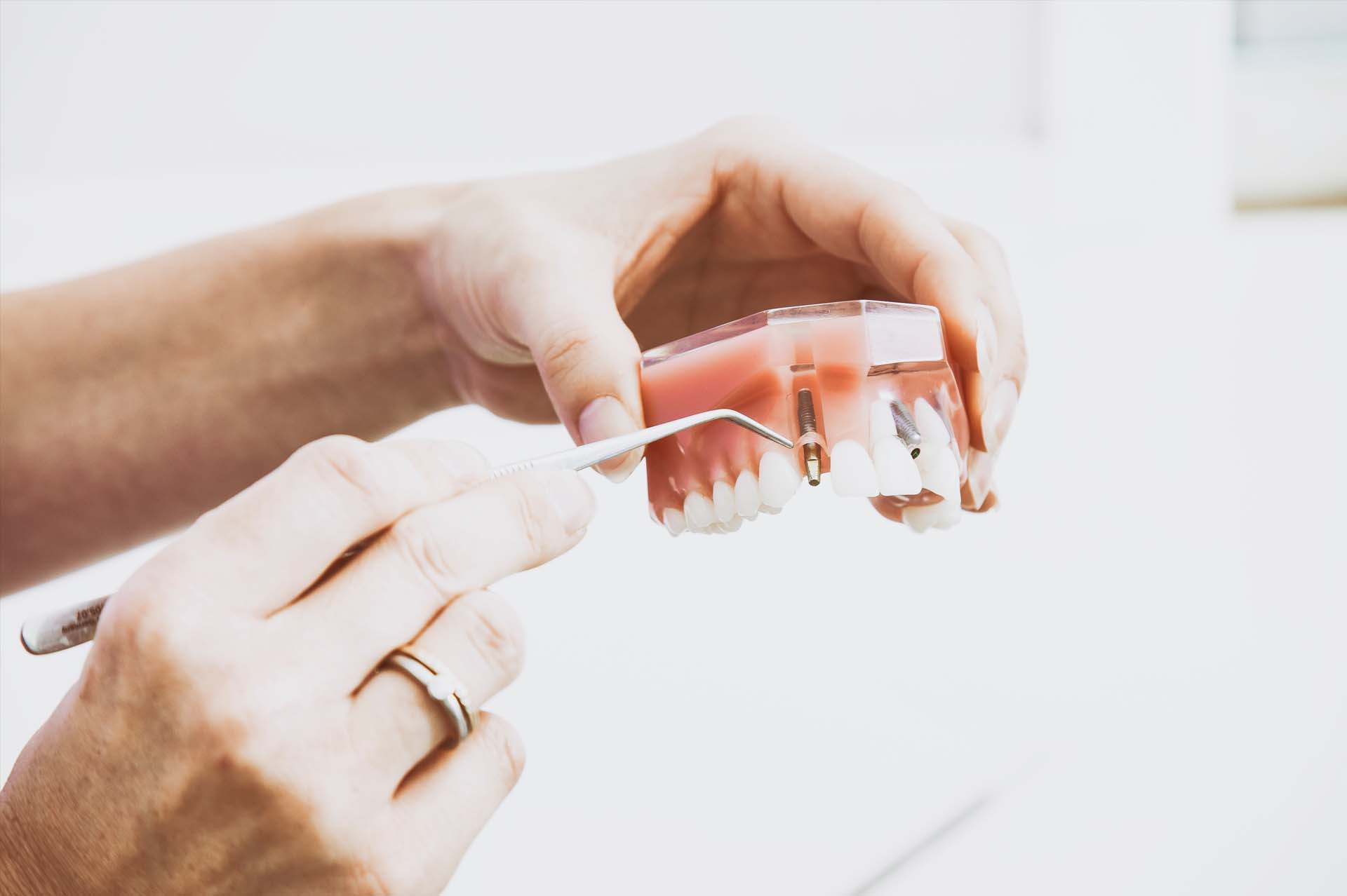 Dental implants model | Napanee Dentistry